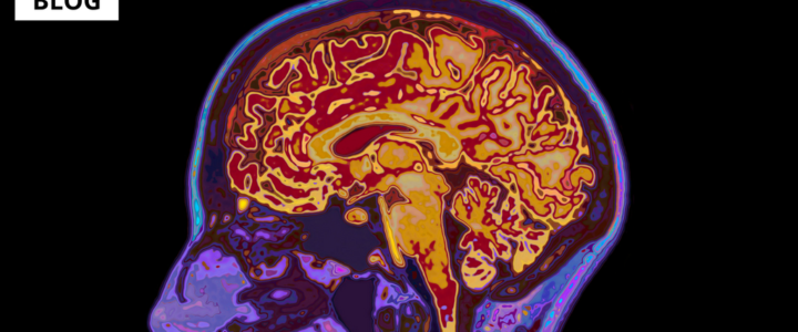 Symptoms of early-onset Alzheimer's disease